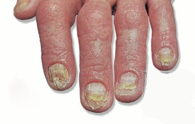 какие виды наращивания ногтей бывают