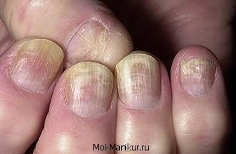 Онихомикоз ногтей рук.