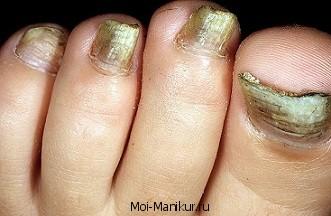 Онихомикоз ногтей ног.
