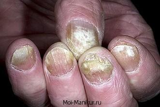 Онихомикоз ногтей.