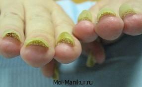 Заболевание ногтей онихолизис.