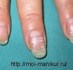 Белые пигментные пятна на ногтях.