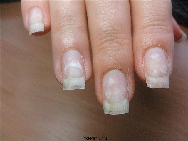 Фото пигментных пятен на ногтях рук.