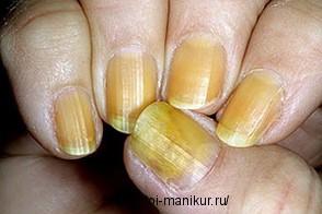 Причины и лечение желтых ногтей.