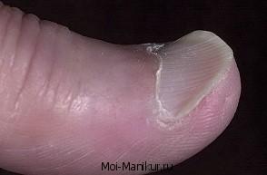 Койлонихия ногтей.