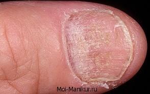 Болезнь ногтей койлонихия.