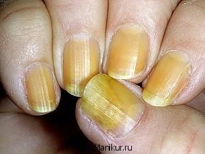 Жёлтые пятна на ногтях.