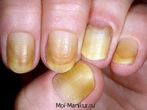 Жёлтые ногти на руках.