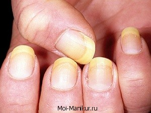 Жёлтые ногти фото.