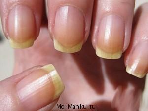 Жёлтые ногти на пальцах рук.