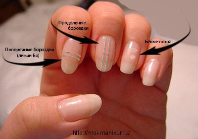 Полоски на ногтях: виды, причины возникновения и лечение.