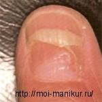 Отторжение ногтевой пластины или онихомадезис.