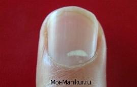 Поперечные полоски на ногтях.