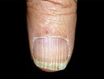 Фото продольных полосок на ногтях.