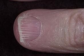 Продольные полоски на ногтях рук.