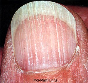 Продольные полоски на ногтях.