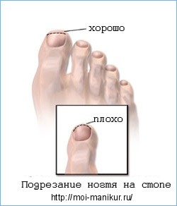 Начальная стадия, профилактика вросшего ногтя.