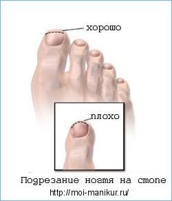 Дрожжевой грибок ногтей заразен ли он