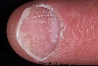 Болезнь ногтей псориаз.