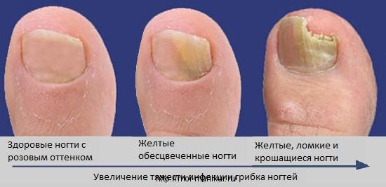 Грибок ногтей, развитие, профилактика и лечение.