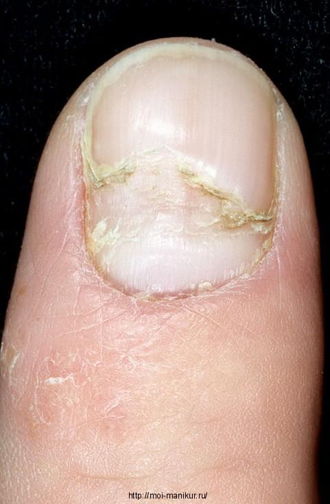 Средство от межпальцевого грибка ног