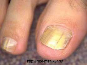 Заболевание кондидоз ногтей на ногах.