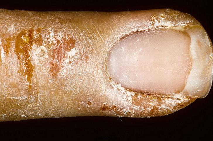 Как лечить шишки на втором пальце ноги