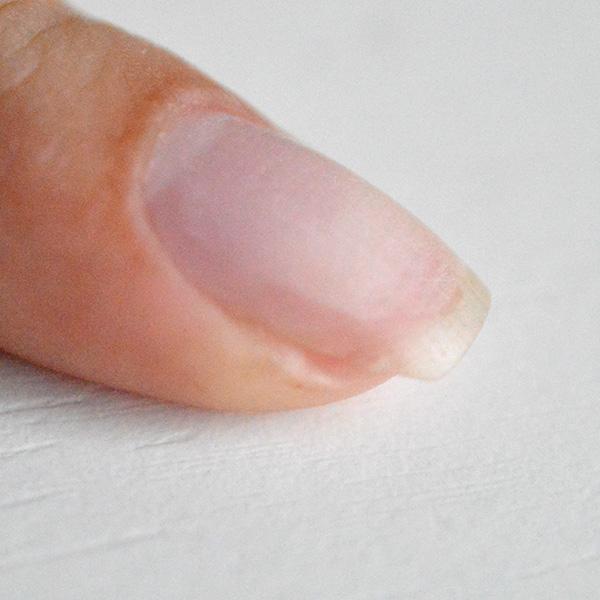 обезжиривание поломанного ногтя