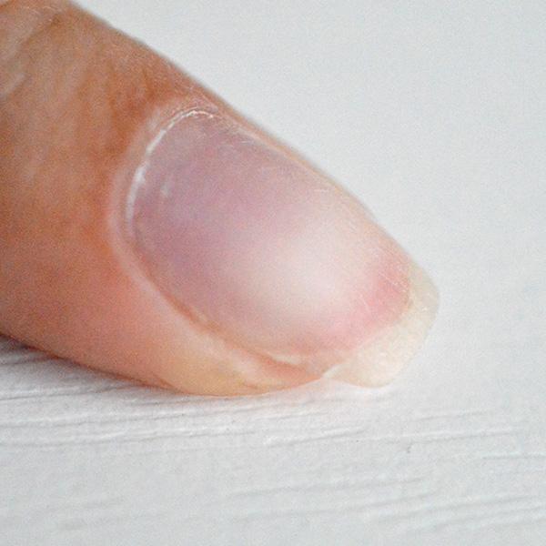 подготовка поломанного ногтя