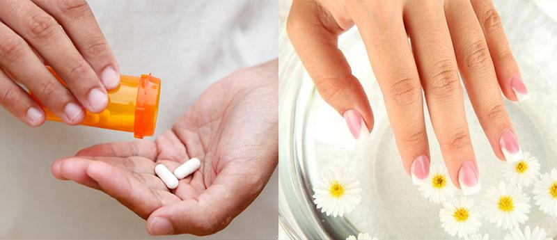 лечение аллергии на гель лак